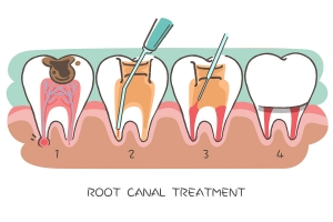 Bioceramic-Based Root Canal Sealers