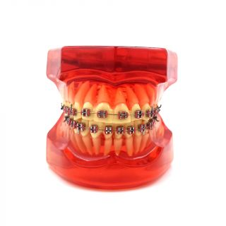 Orthodontic Metal Bracket Model B7-01 - HST