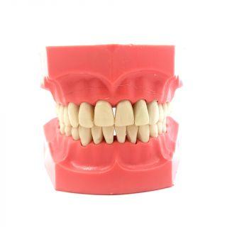 Typodont Jaw - Apex