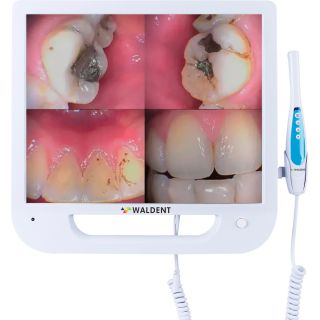 Intra Oral Camera with Screen Ergo - Waldent